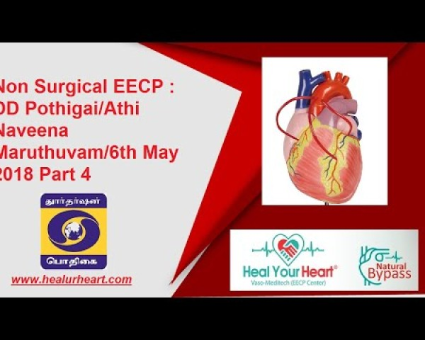 non surgical eecp dd pothigai athi naveena maruthuvam 6th may 2018 part 4